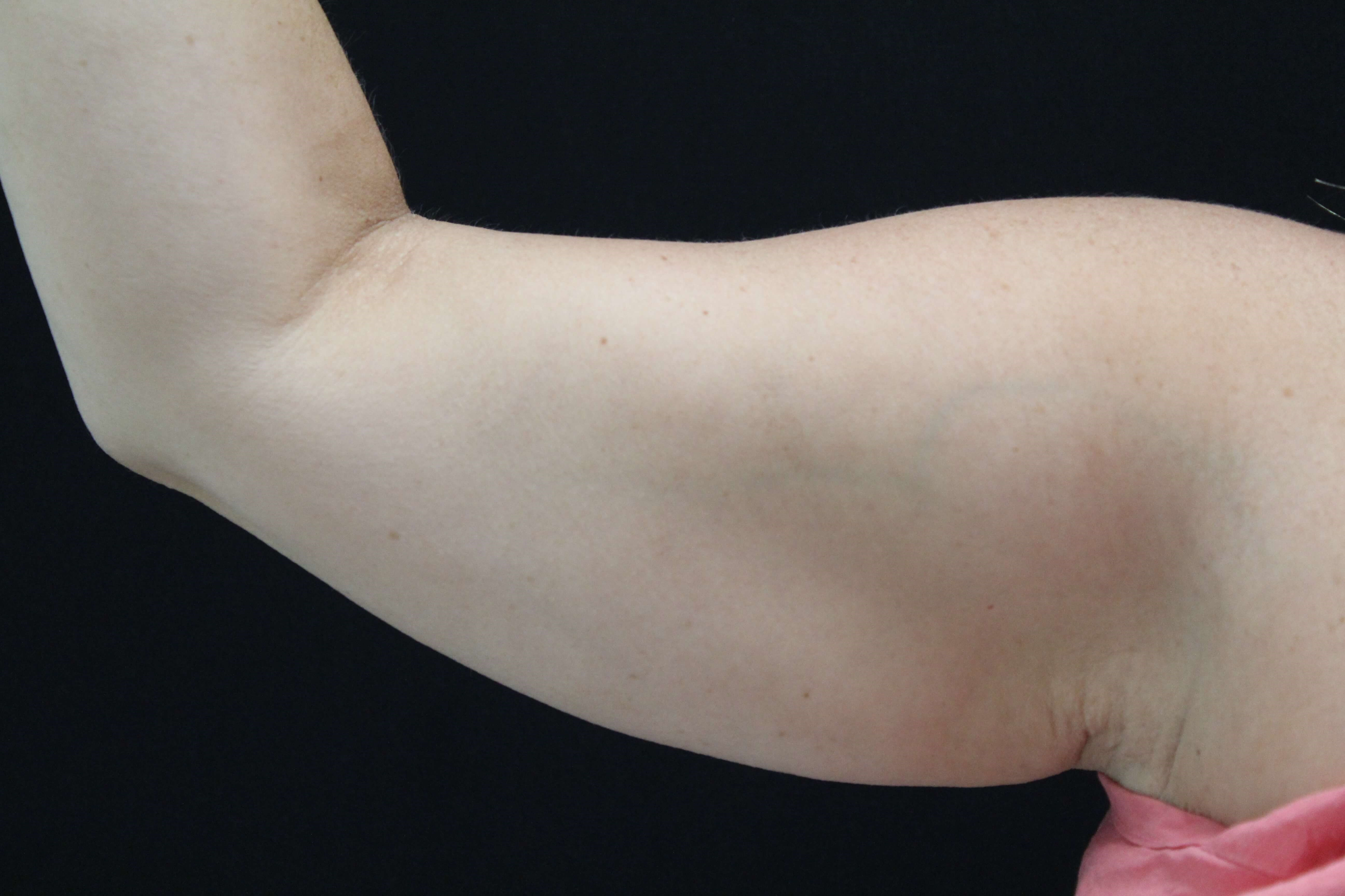Coolsculpting to arms Before