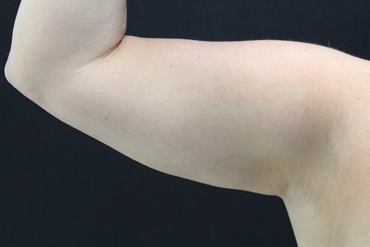 Coolsculpting to arms After