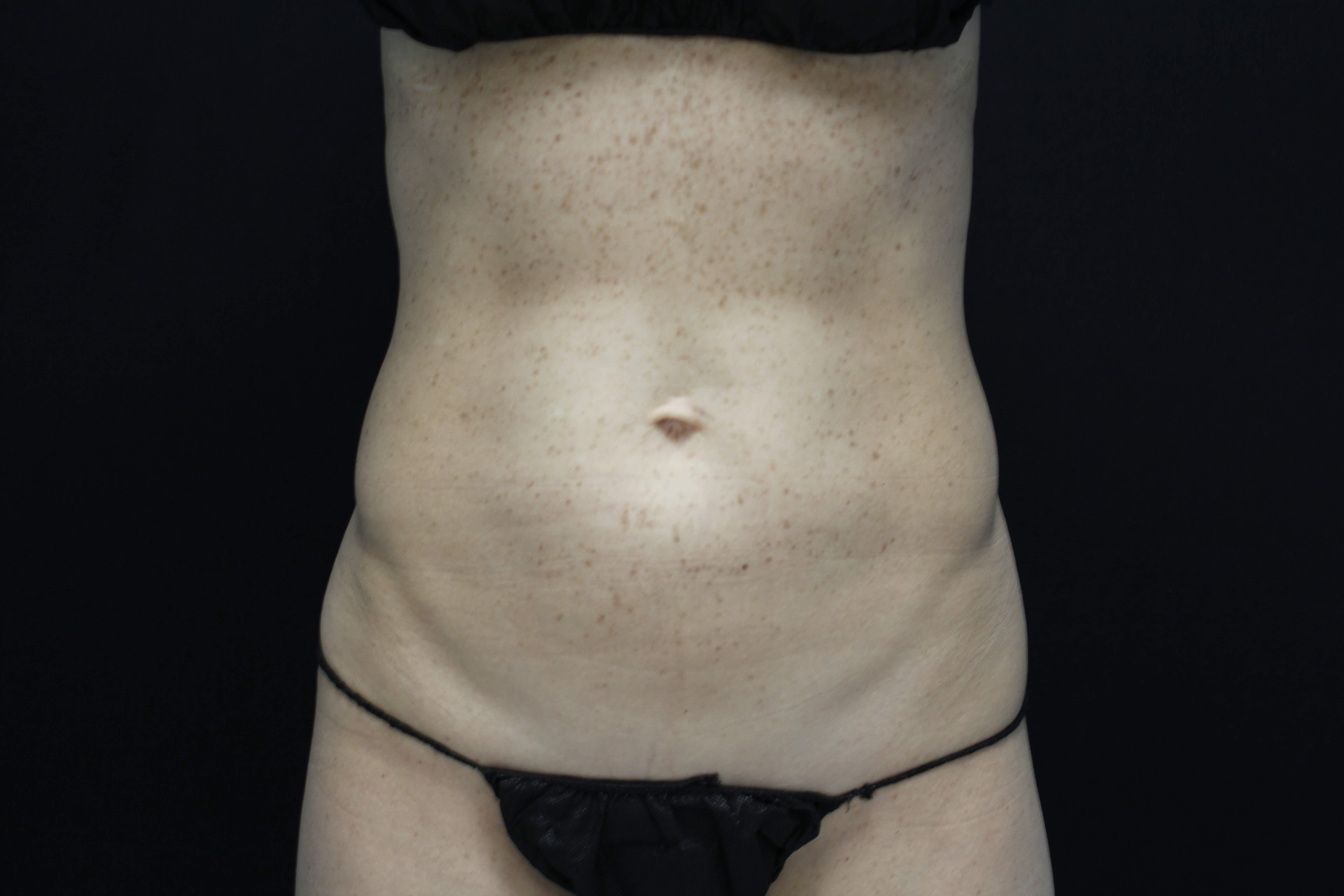 Coolsculpting abdomen, flanks After