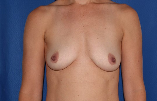 Breast Augmentation - 210 cc Before