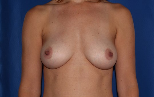Breast Augmentation - 210 cc After