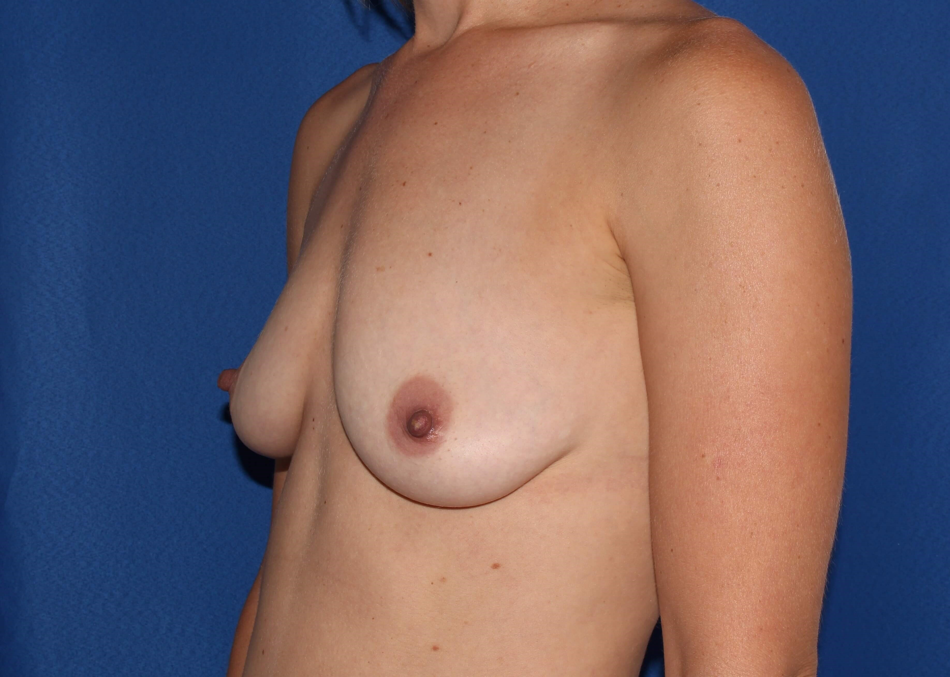 Breast Augmentation - 210cc Before