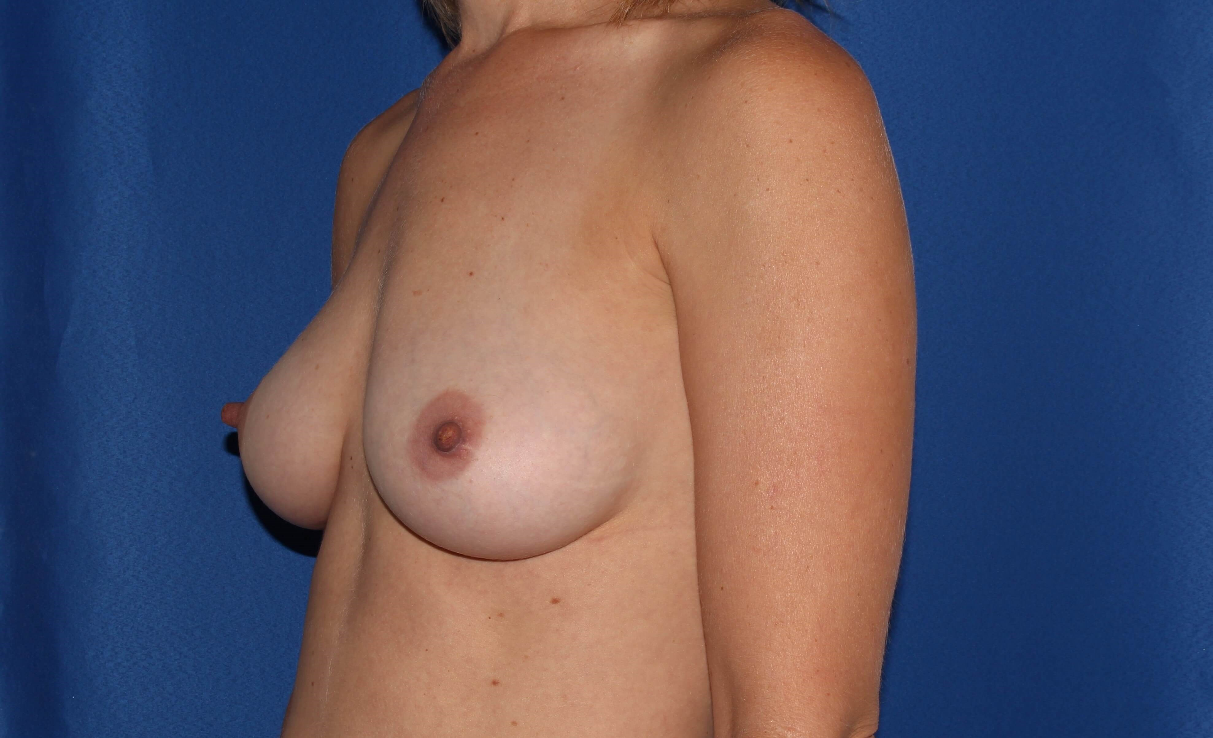 Breast Augmentation - 210cc After