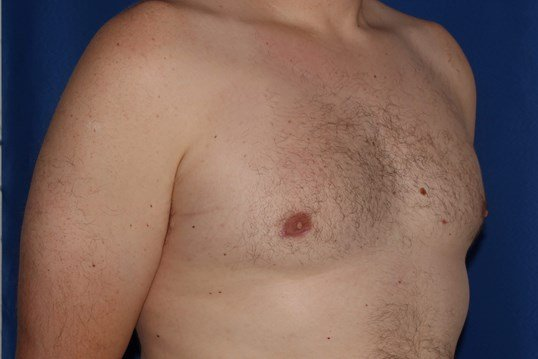 Reduction of gynecomastia After