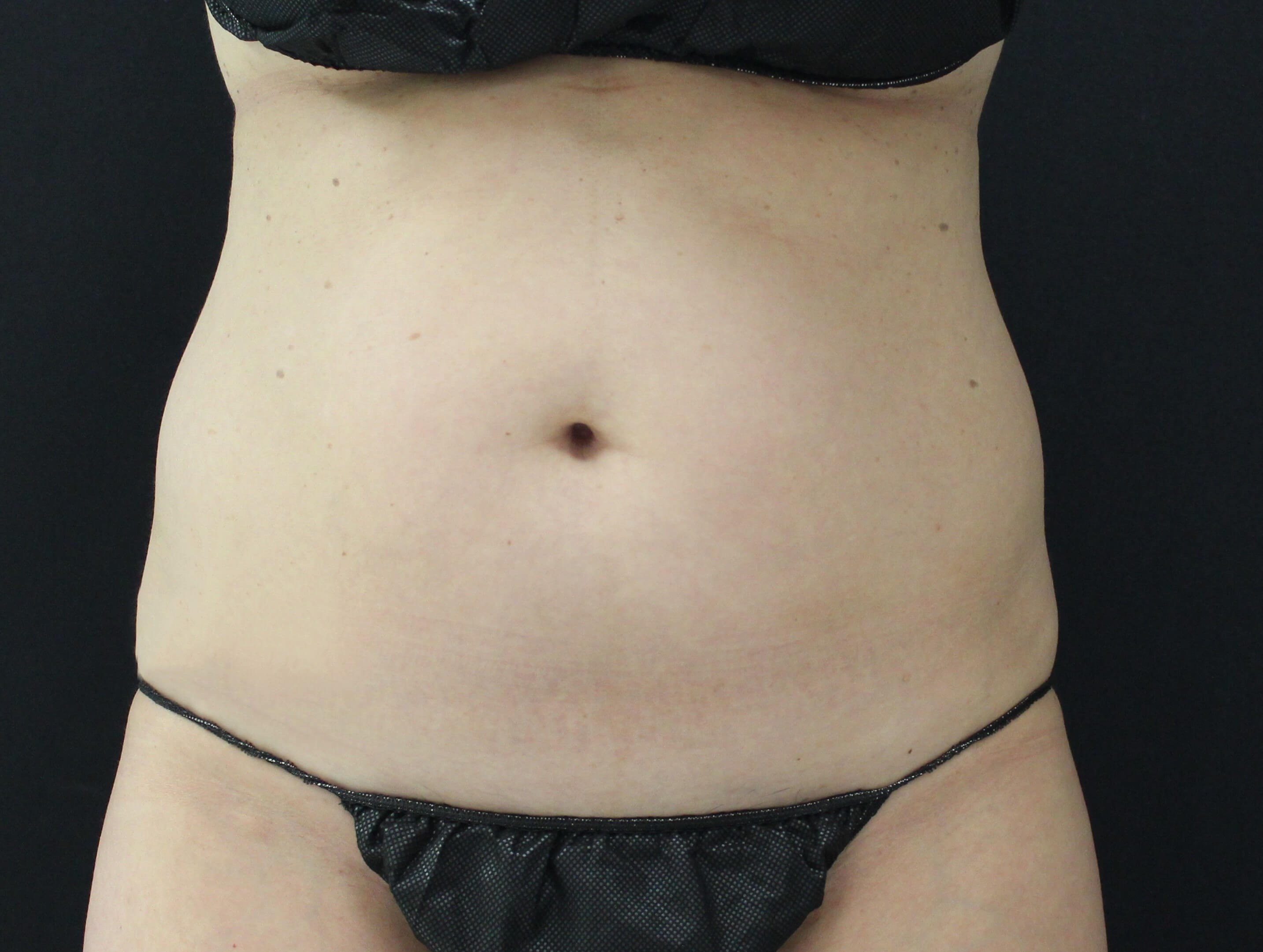 Coolsculpting abdomen, flanks Before