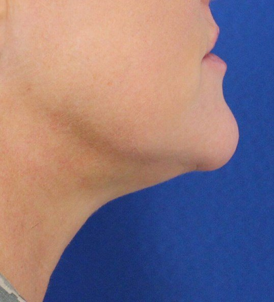 Ultherapy Skin Tightening Before