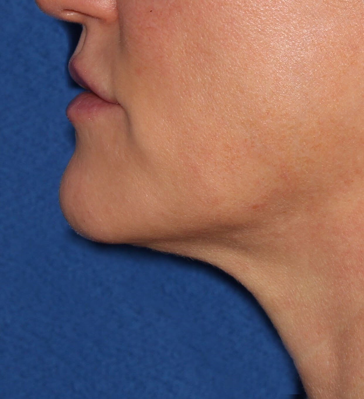 Ultherapy Skin Tightening After- one year post-treatment