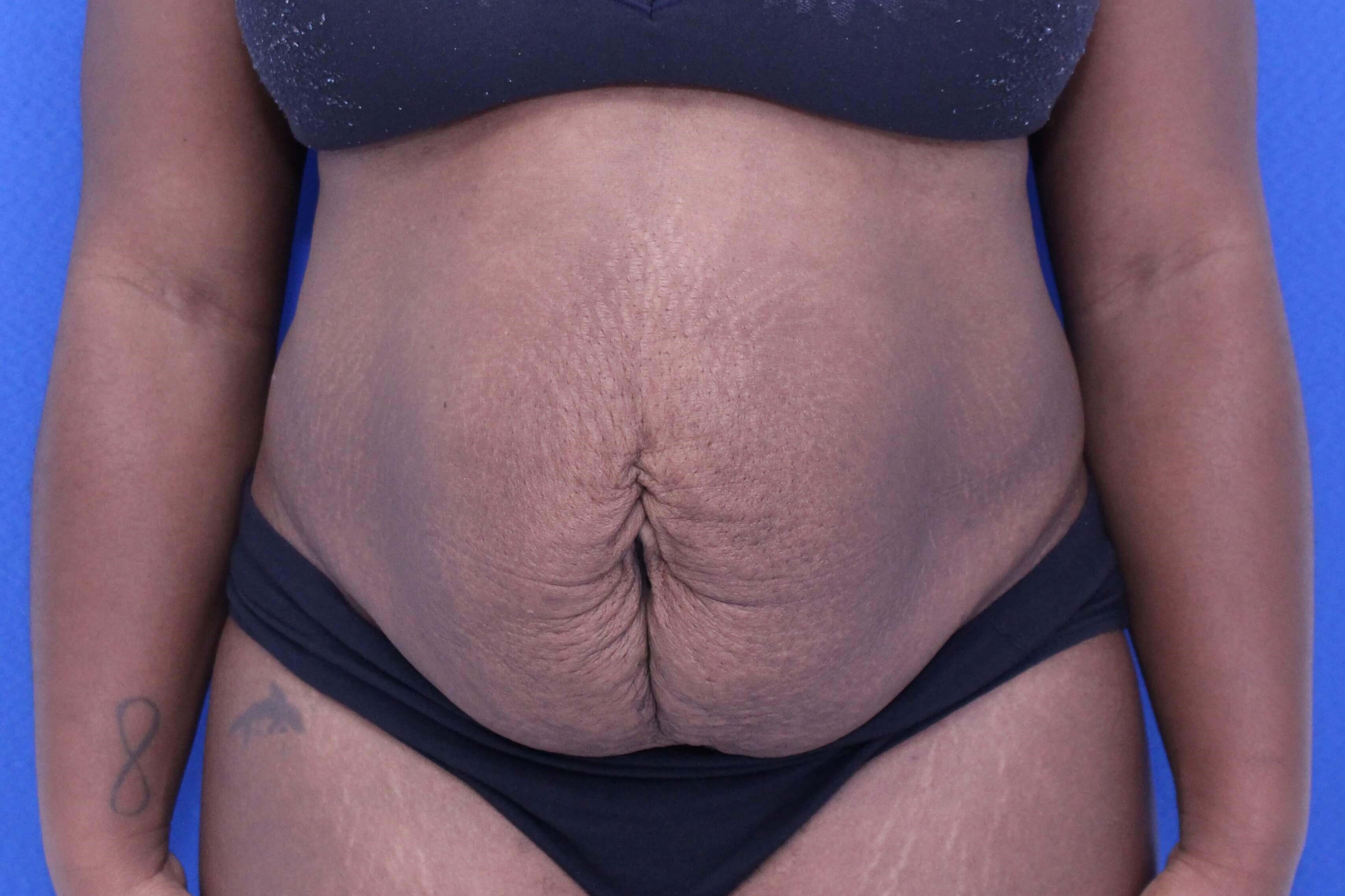 Abdominoplasty surgery Before