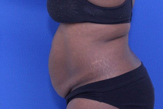 Abdominoplasty- side view Before