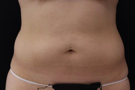 Coolsculpting abdomen/flanks Before