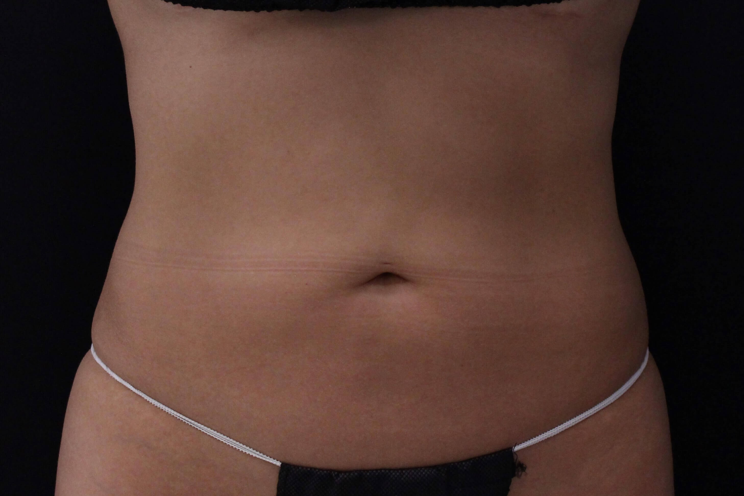 Coolsculpting abdomen/flanks After