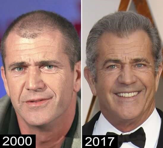 Bald Hollywood 5 Actors That Have Had Hair Transplants