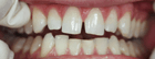 Veneers to close front gap Before