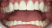 Veneers to close front gap After