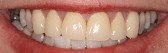 Arlington- Teeth Whitening After