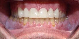 Arlington-Smile Makeover After