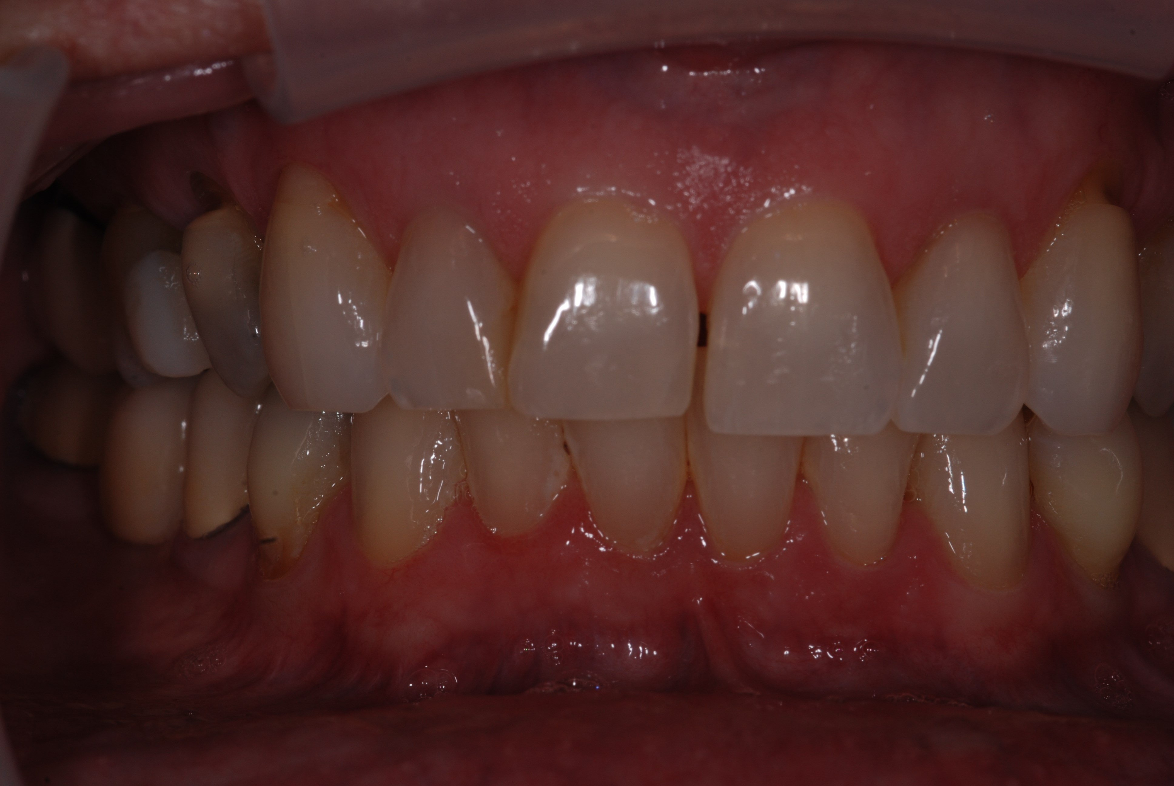 Veneers Success Story Before