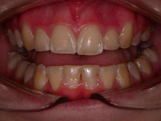 Repaired Damaged Teeth After