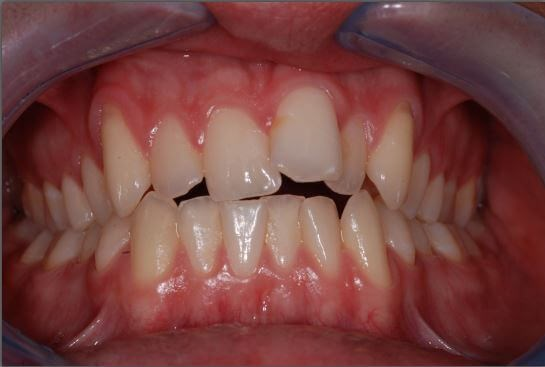 Invisalign Smile Results Before
