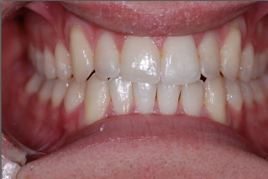 Invisalign Smile Results After