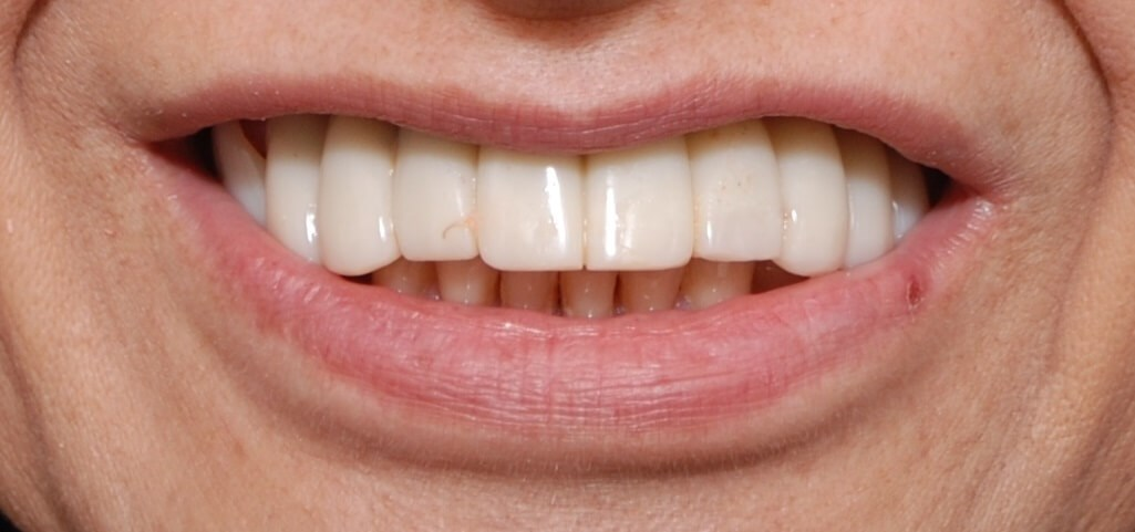 Transform Smile with Dentures Before