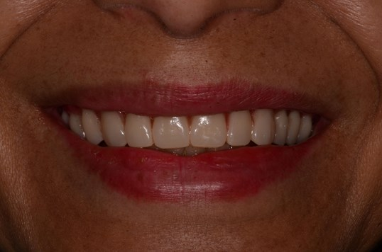 Transform Smile with Dentures After