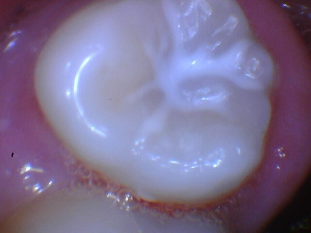Dental Sealant After Sealant