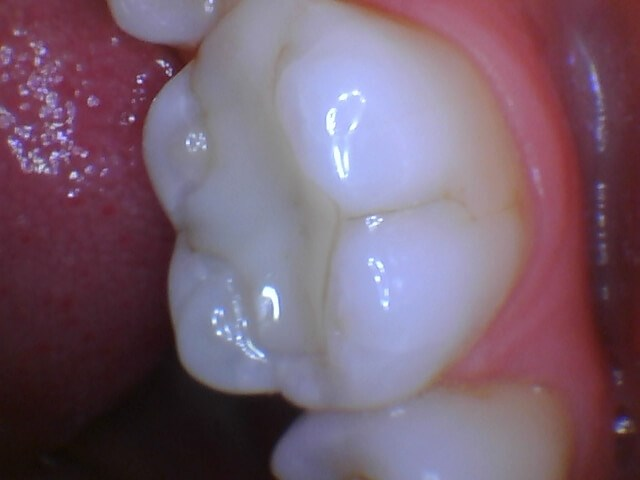 Dental Crown Before Crown