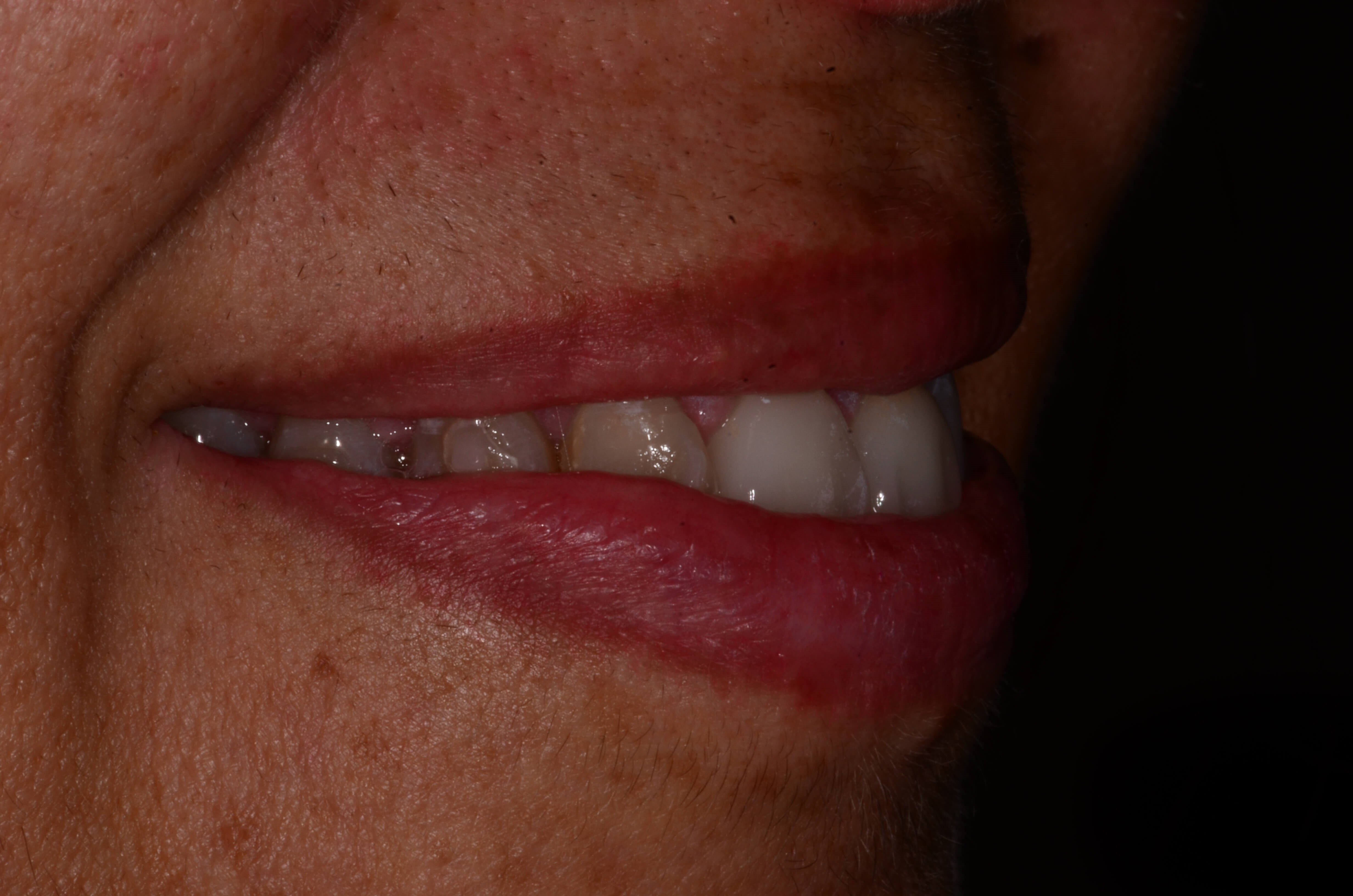 Invisalign and Dental Crowns After