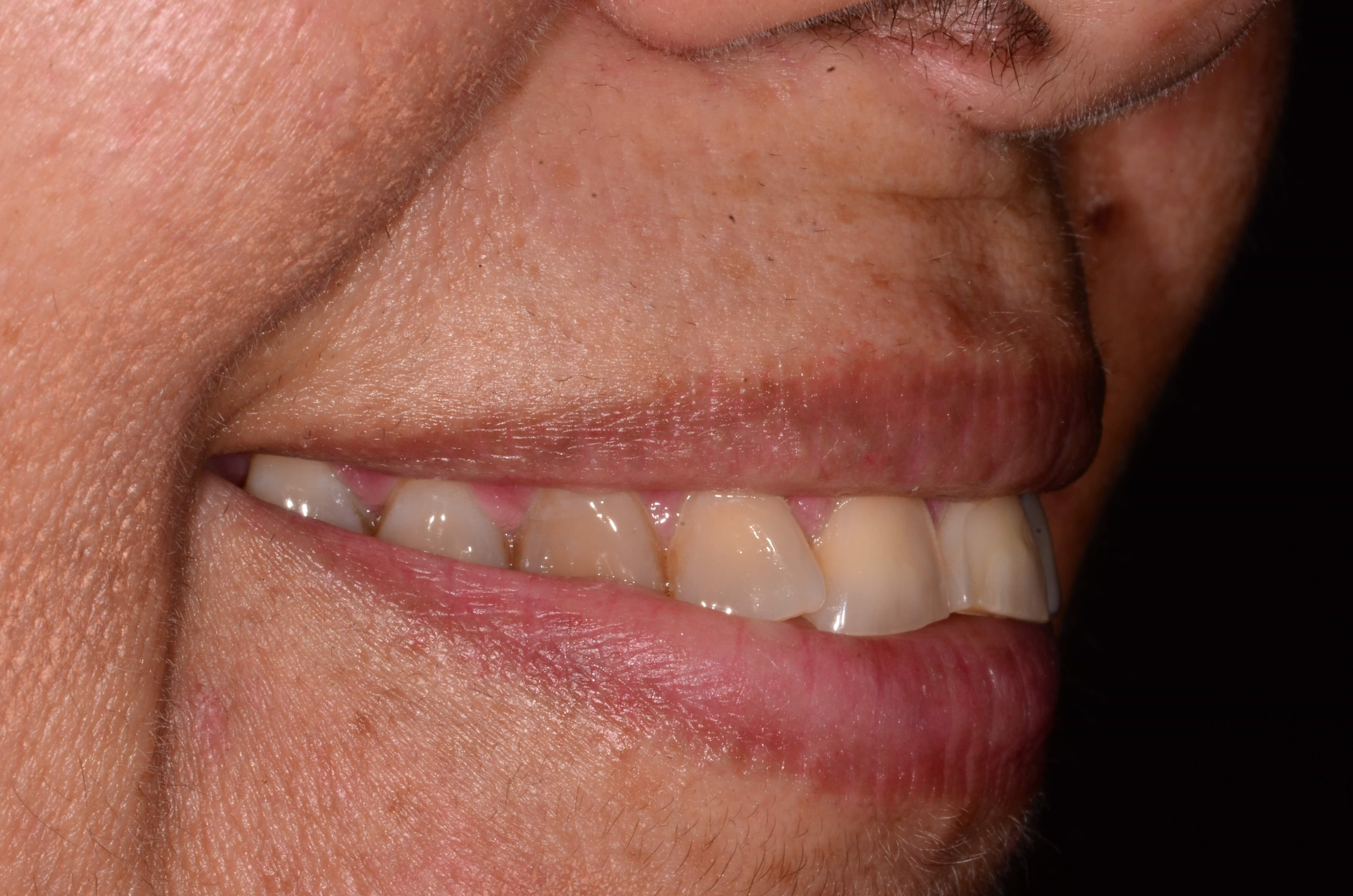 Invisalign and Dental Crowns Before