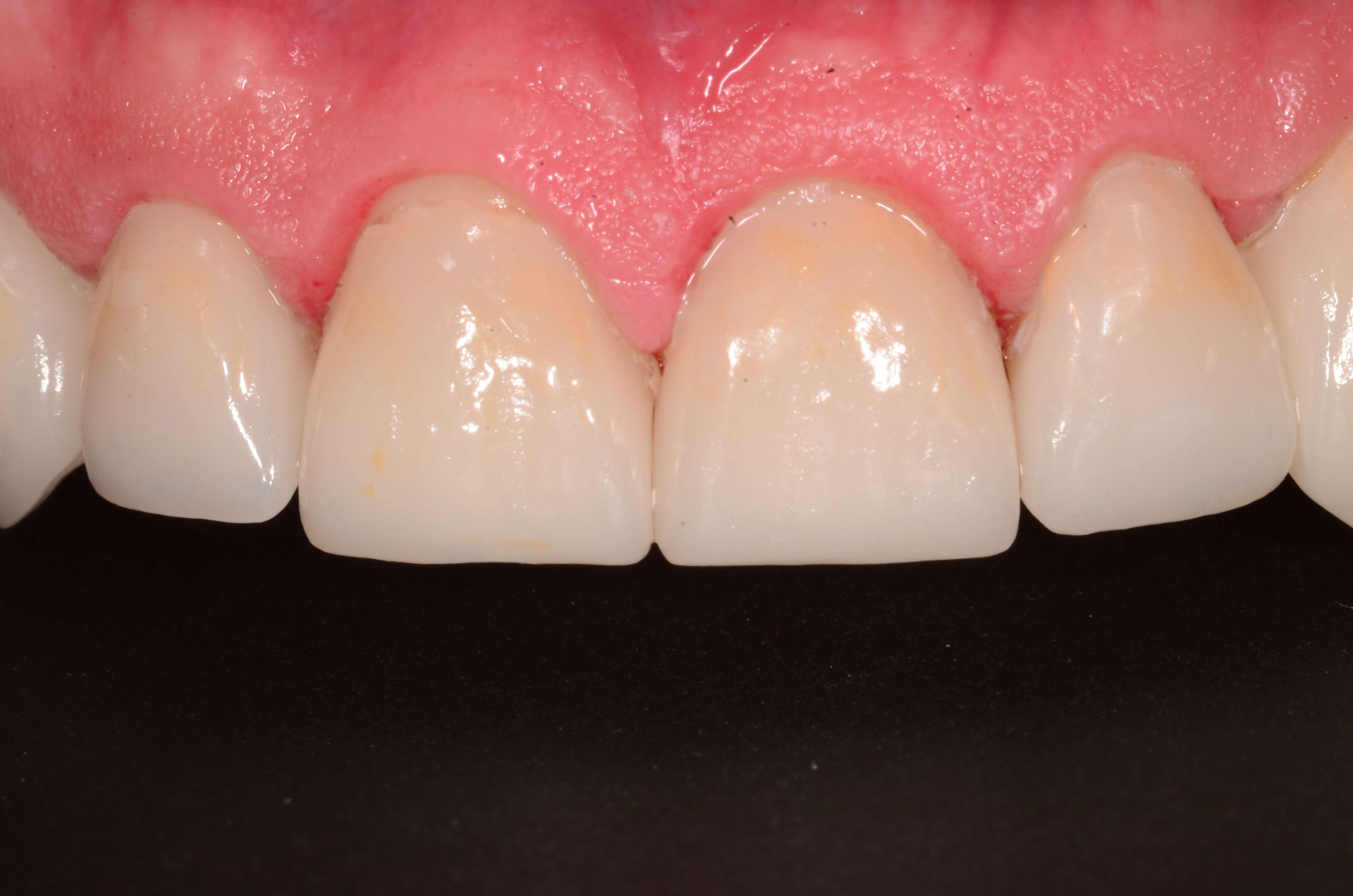 Smile Makeover After Crowns