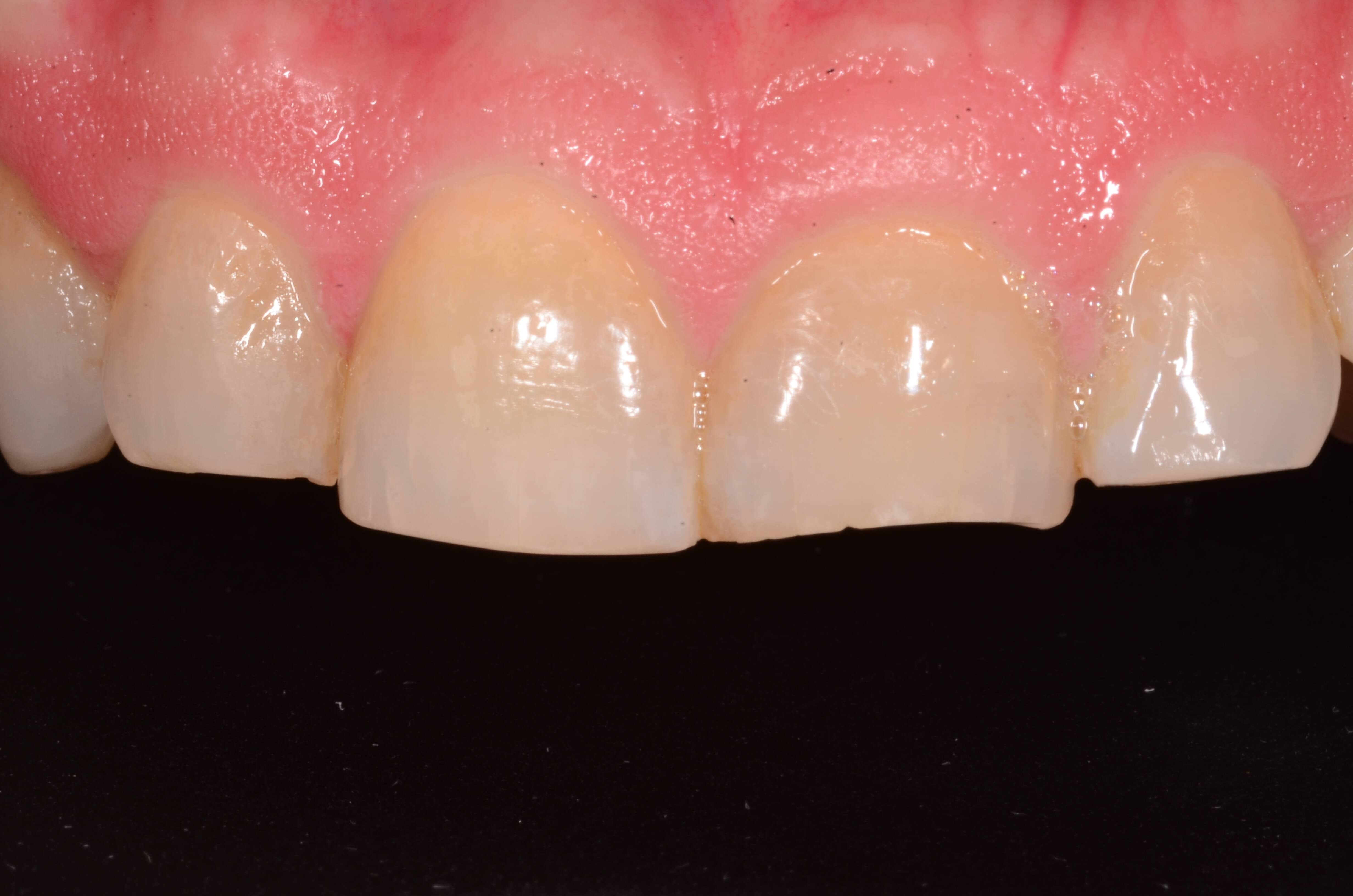 Smile Makeover Before Crowns