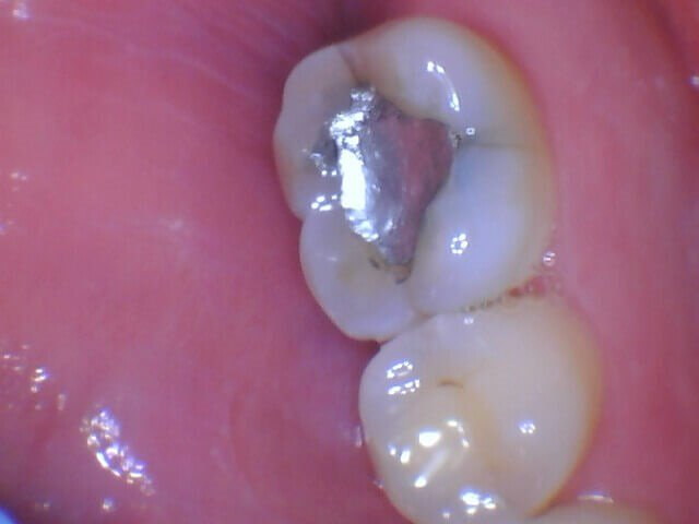 Dental Crown Before