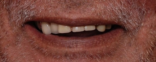 Smile Makeover with Dentures Before Redoing Dentures