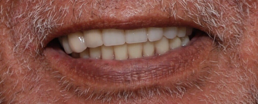 Smile Makeover with Dentures After Redoing Dentures