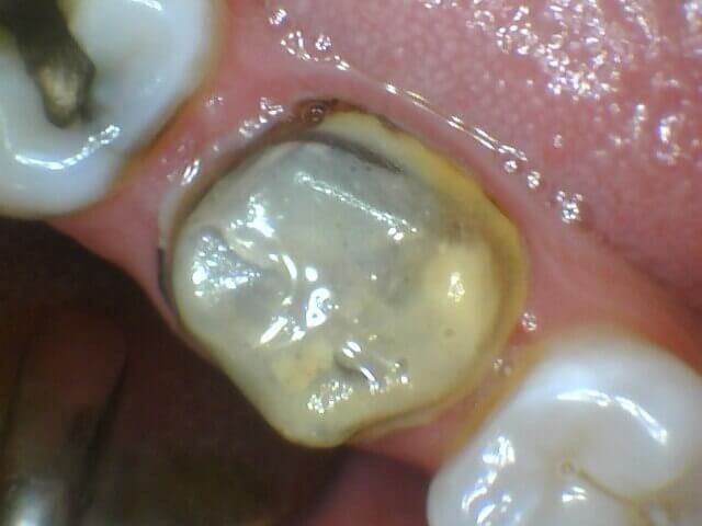 Cavity Underneath Crown Before New Crown