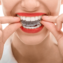 Clear Teeth Aligners*