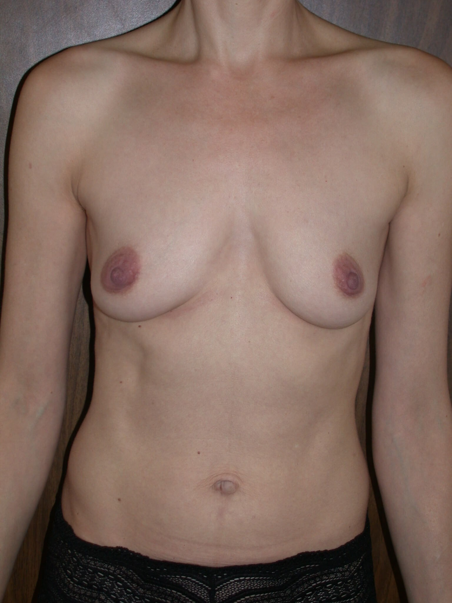 Bilateral Breast Augmentation Before