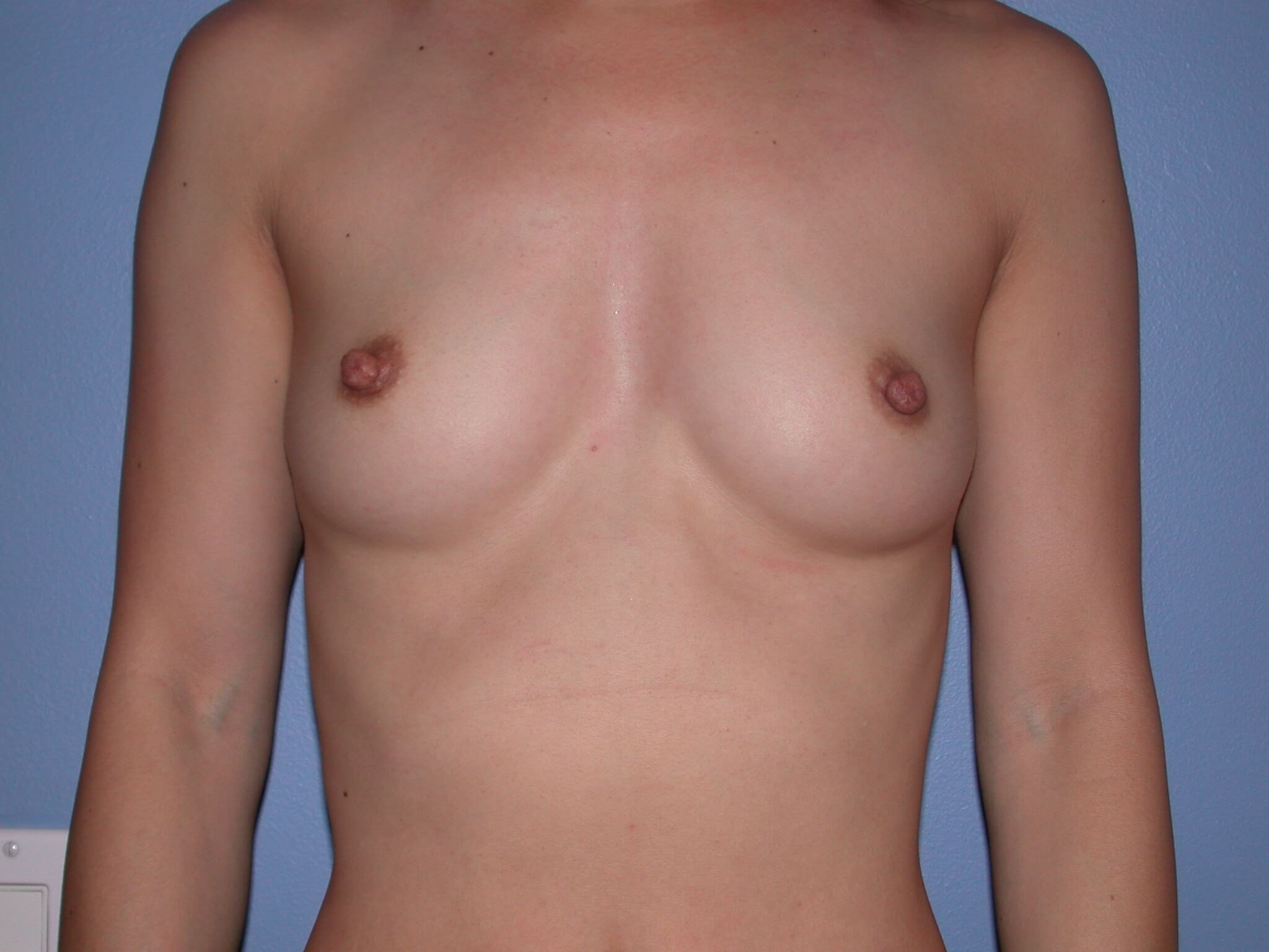 Breast Augmentation - Bay Area Before