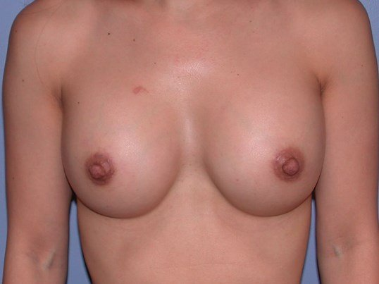 Breast Augmentation - Bay Area After
