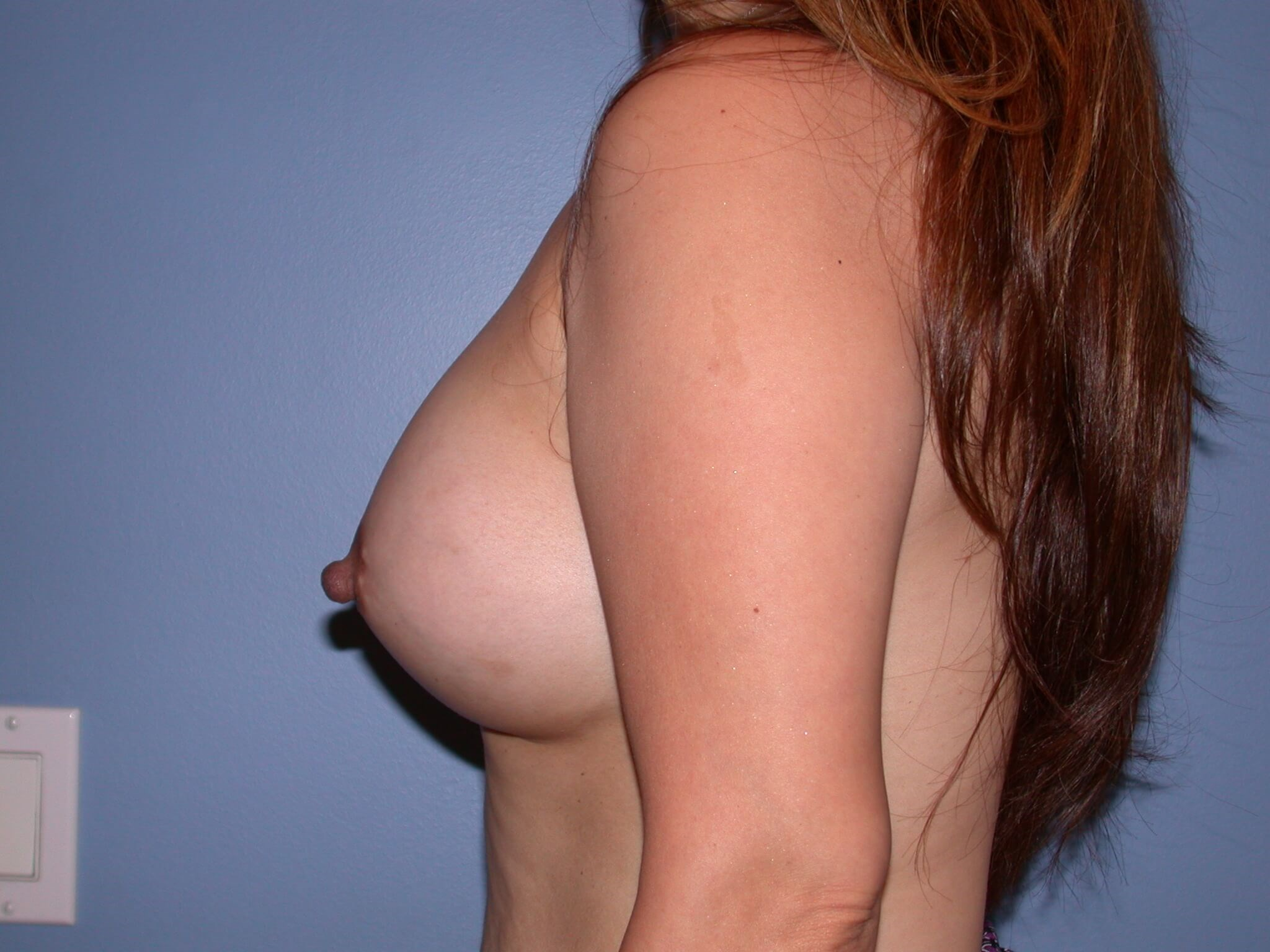 Bilateral Breast Augmentation After
