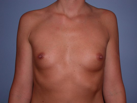 Breast Augmentation with Fat Before