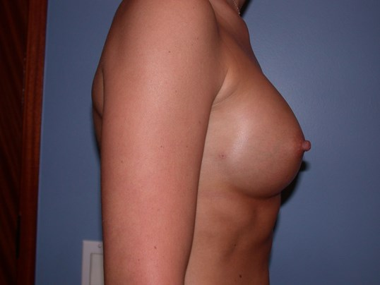 Breast Augmentation with Fat After