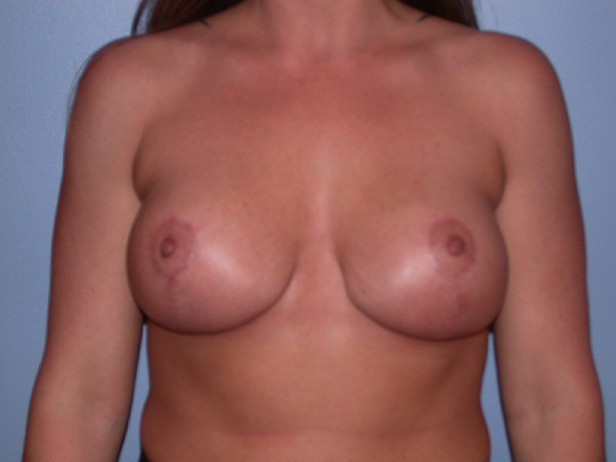 Breast Mastopexy After