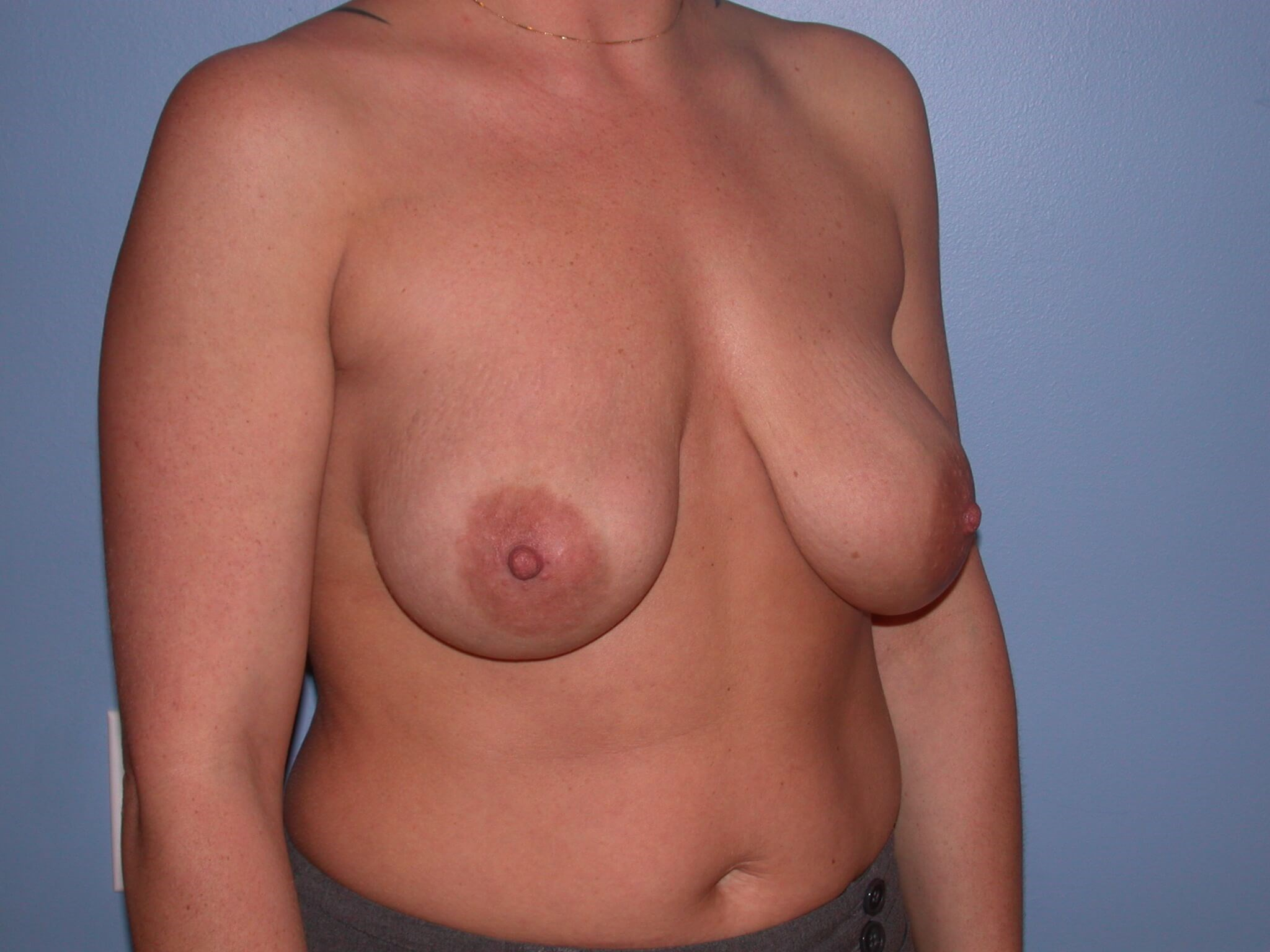 Breast Mastopexy Before
