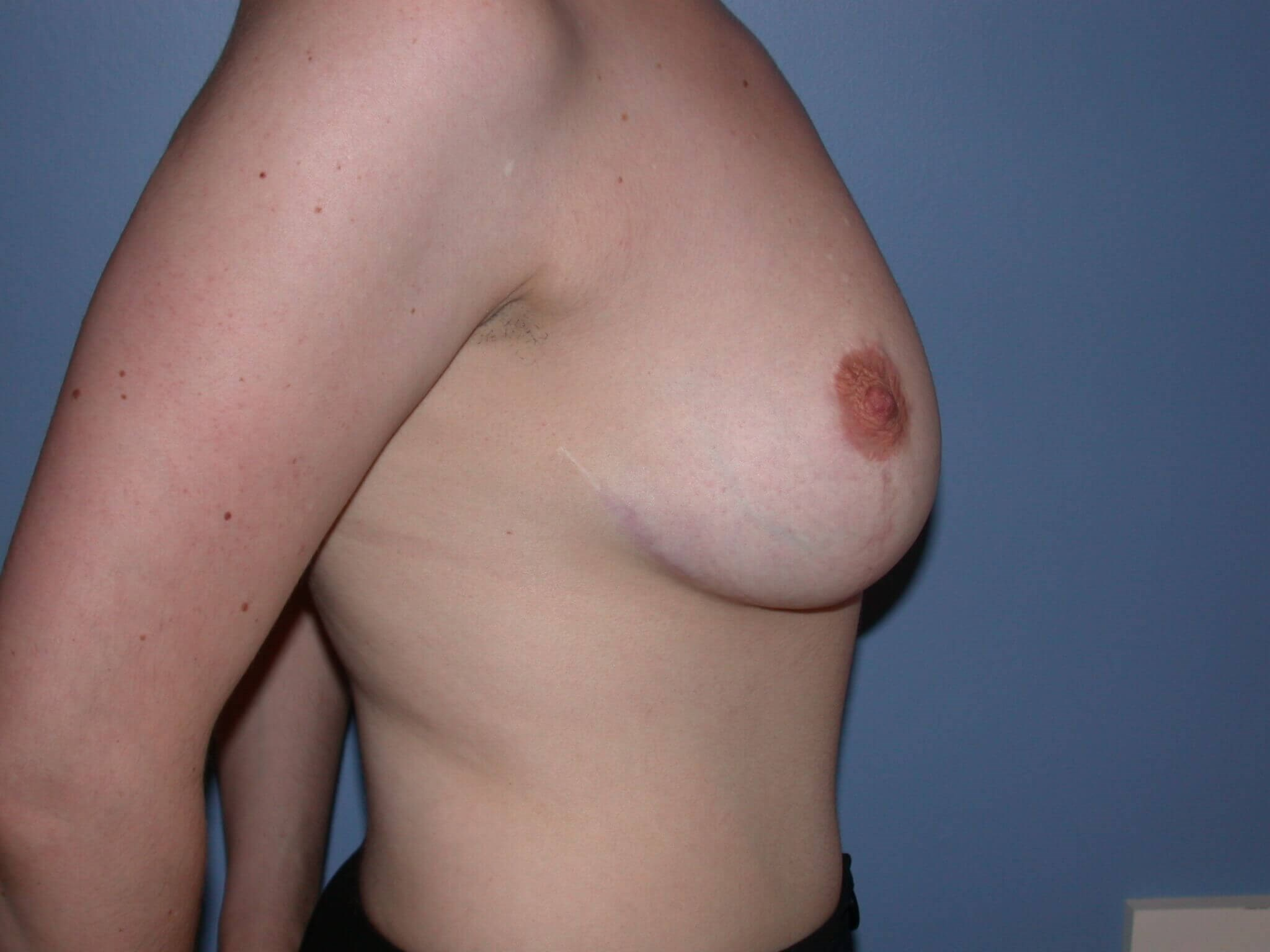 Breast Reduction Side Right After