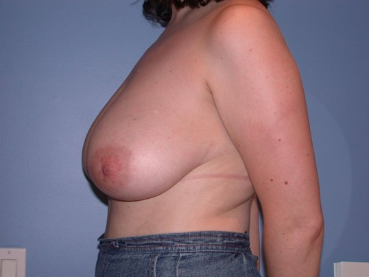 Breast Reduction Side Left Before