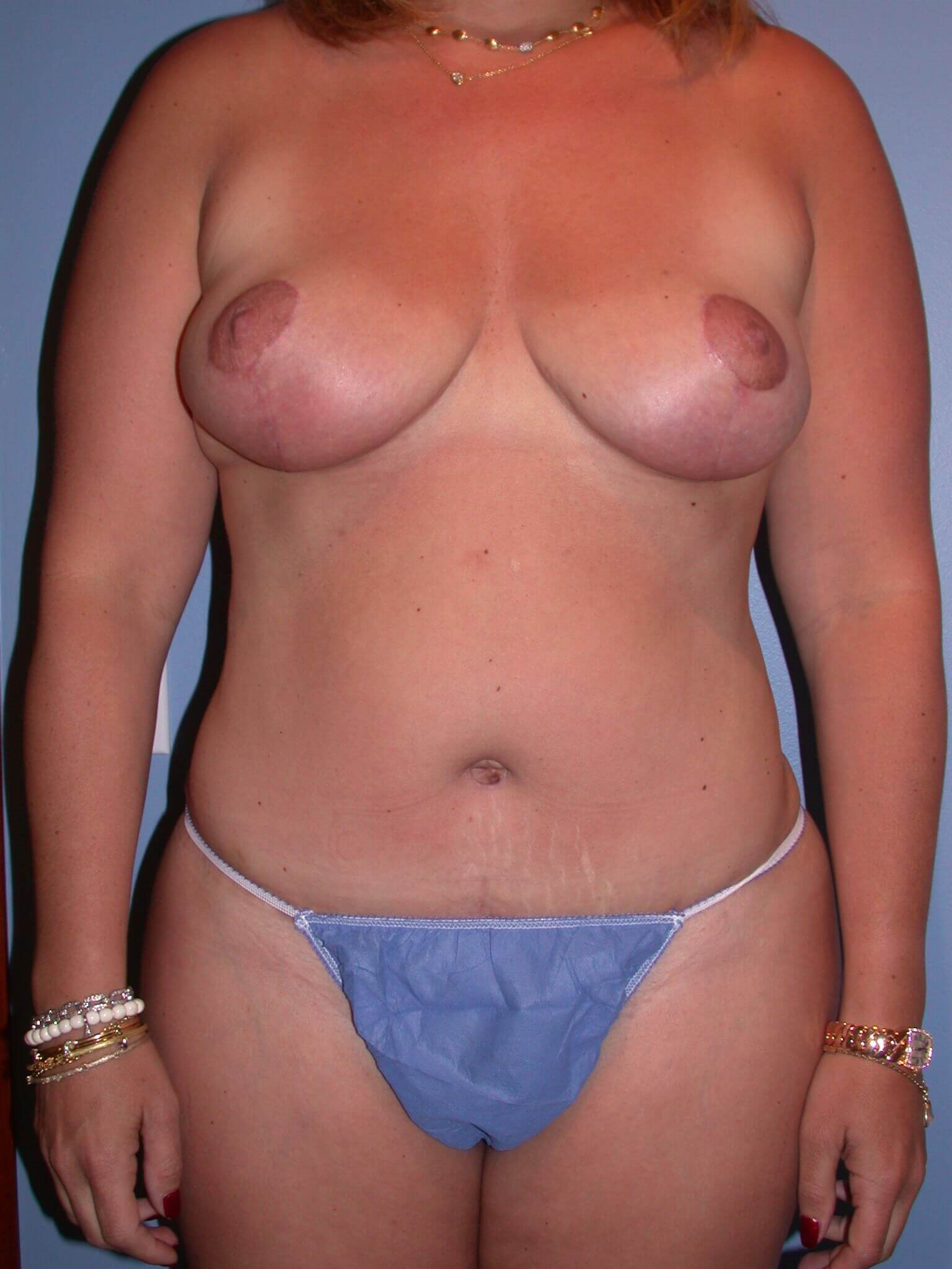 Breast Reduction Front View After