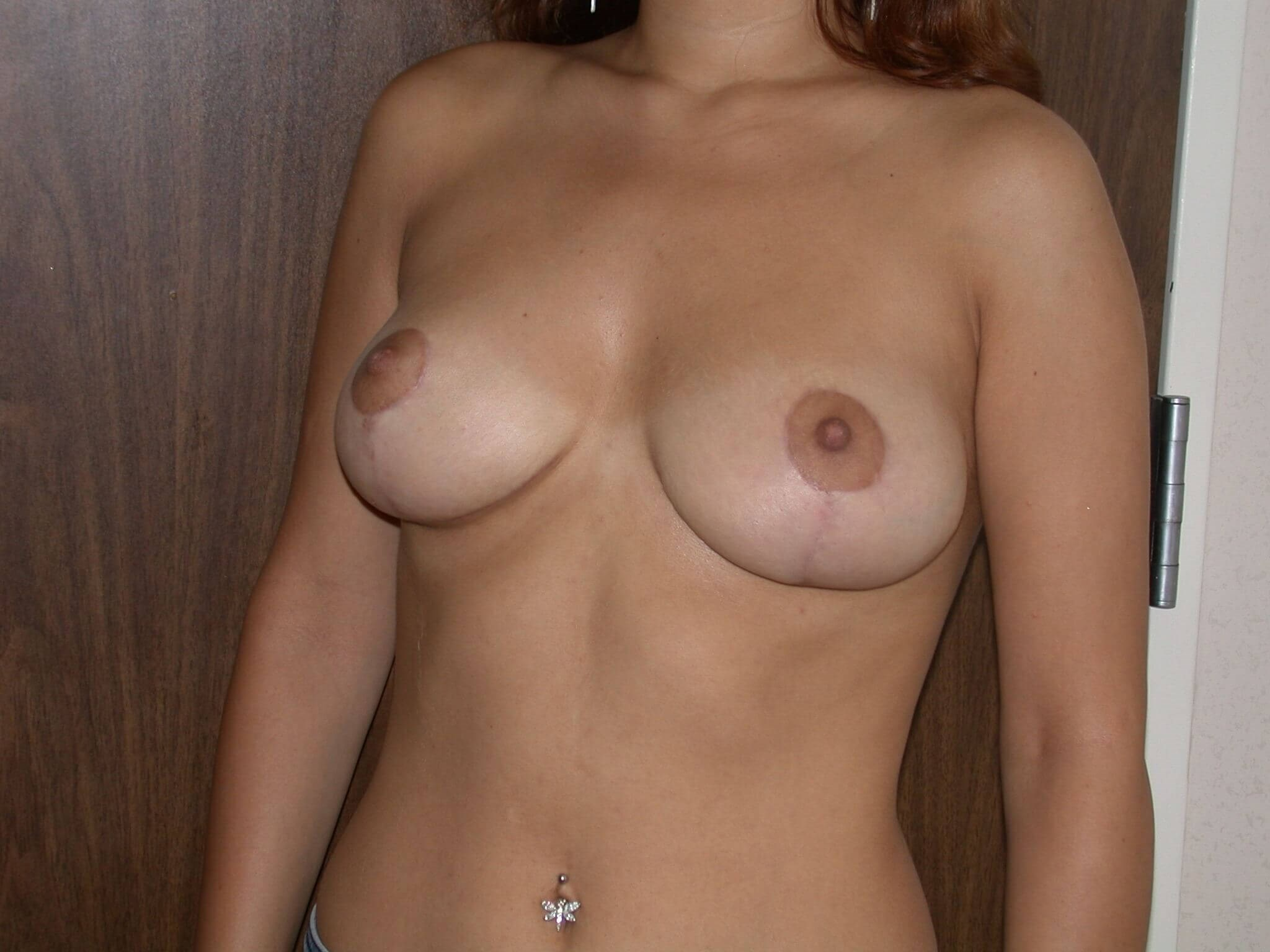 Breast Reduction Side View After
