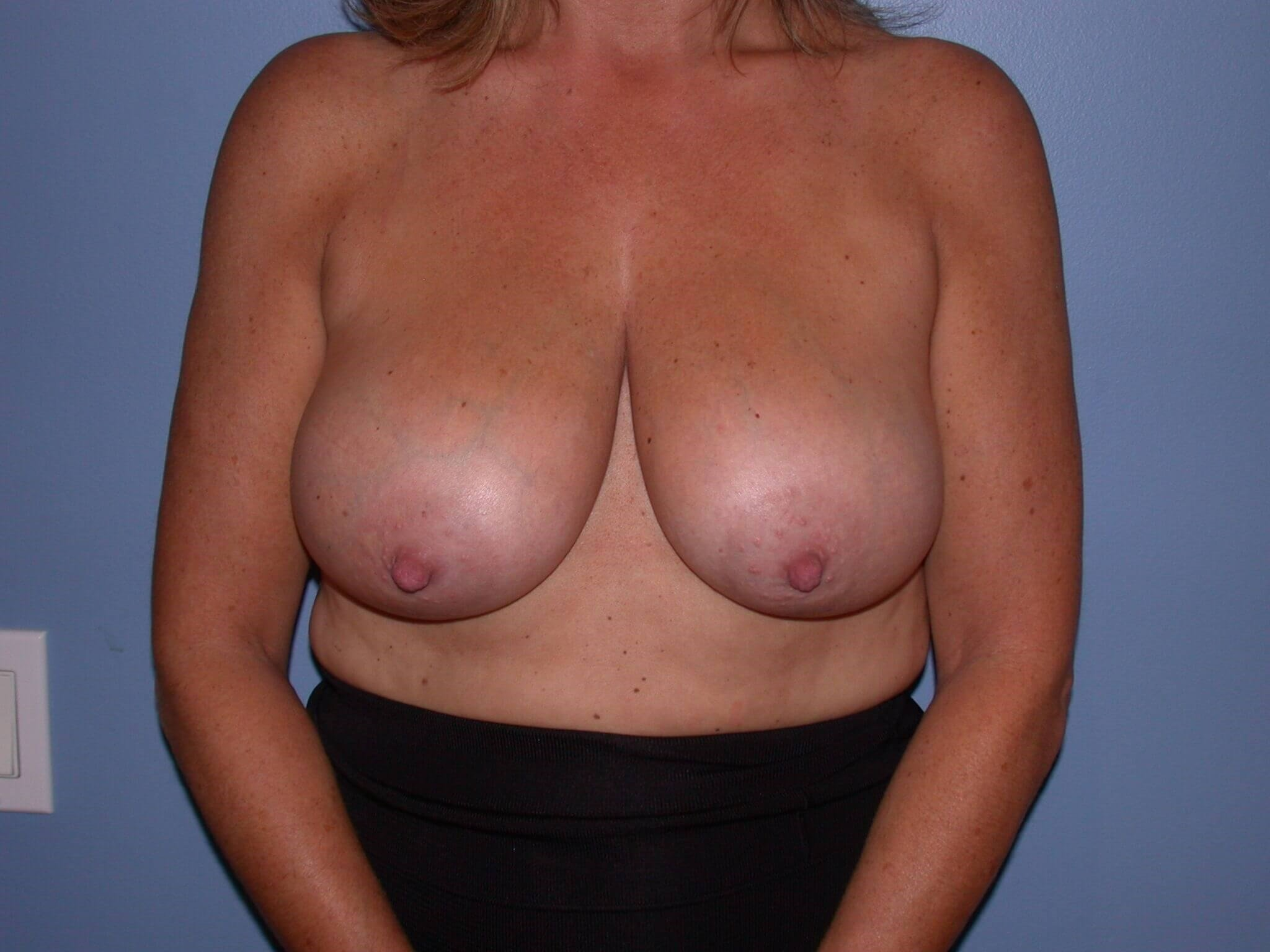 Breast Reduction Front View Before
